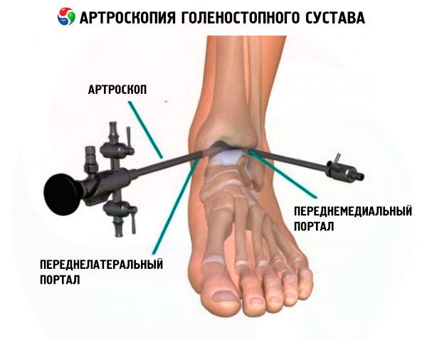 Arthroskopie des Knöchels | Kompetent über Gesundheit auf iLive