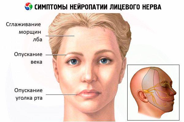 Neuropathie des Gesichtsnervs: Symptome und Behandlung | Kompetent ...