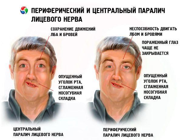 Lähmung des Gesichtsnervs: Ursachen, Symptome, Diagnose, Behandlung ...