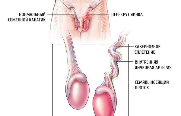 Hodentorsion | Symptome und Behandlung der Hodentorsion | Kompetent ...