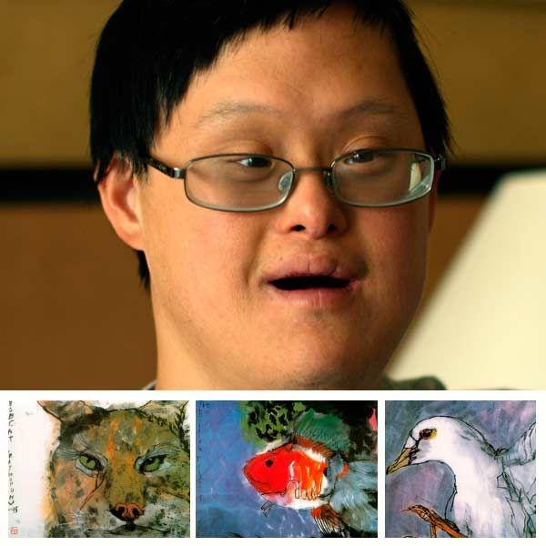 Mosaic Down-Syndrom: äußere Zeichen | Kompetent über Gesundheit auf ...