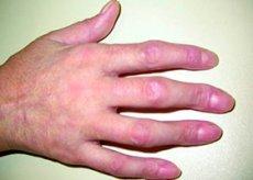 Gemischte Bindegewebserkrankung: Ursachen, Symptome, Diagnose, Behandlung
