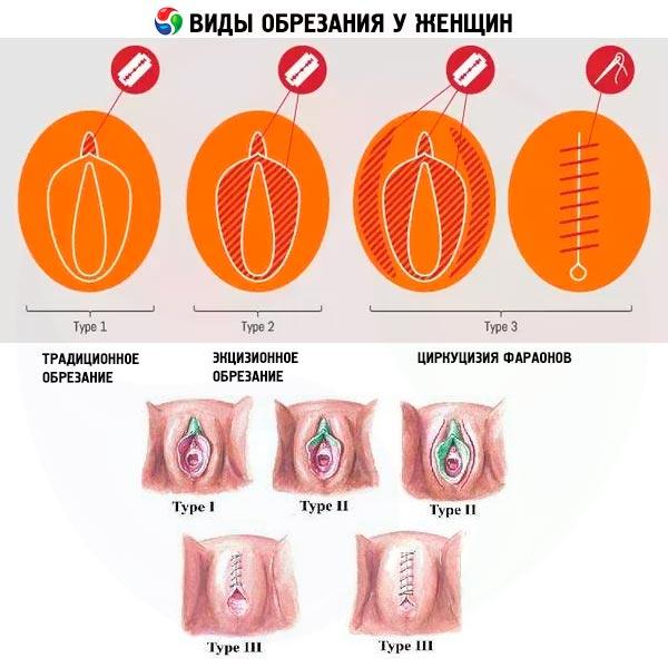 Beschneidung bei Frauen: Wie und warum | Kompetent über